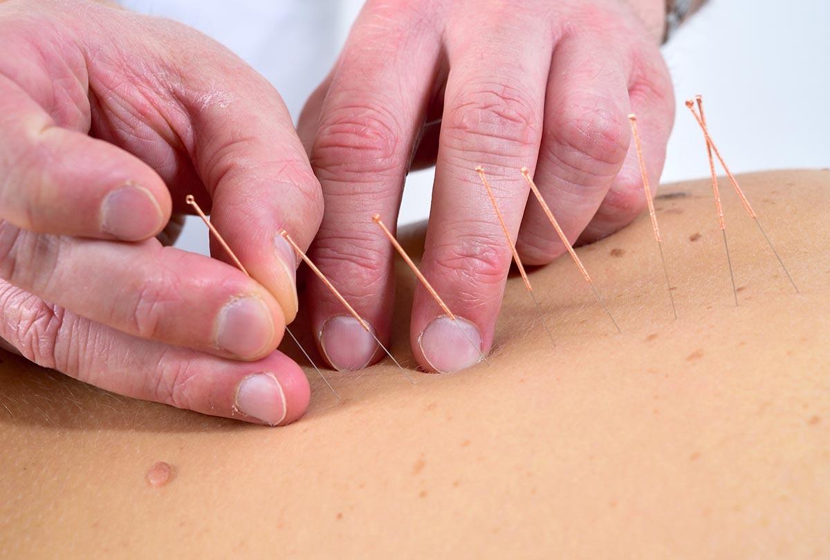 Akupunktur-1