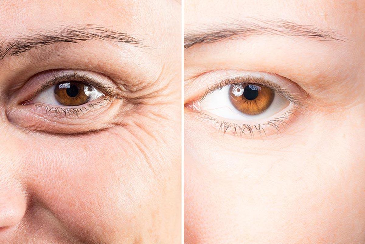 Augenlidprobleme-2